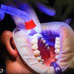 Zła dieta żywienia się to większe niedobory w zębach natomiast również ich utratę